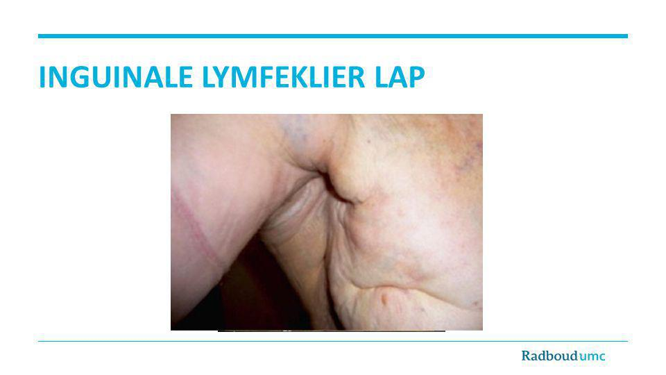 Inguinale lymfeklier lap