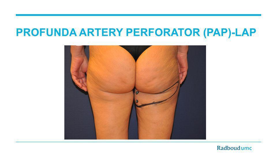 PROFUNDA ARTERY PERFORATOR (PAP)-LAP