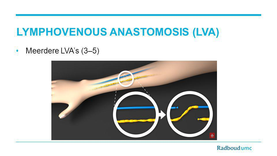 Lymphovenous anastomosis (LVA)