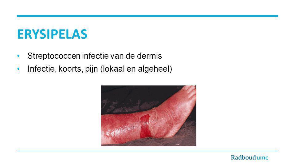 erysipelas Streptococcen infectie van de dermis