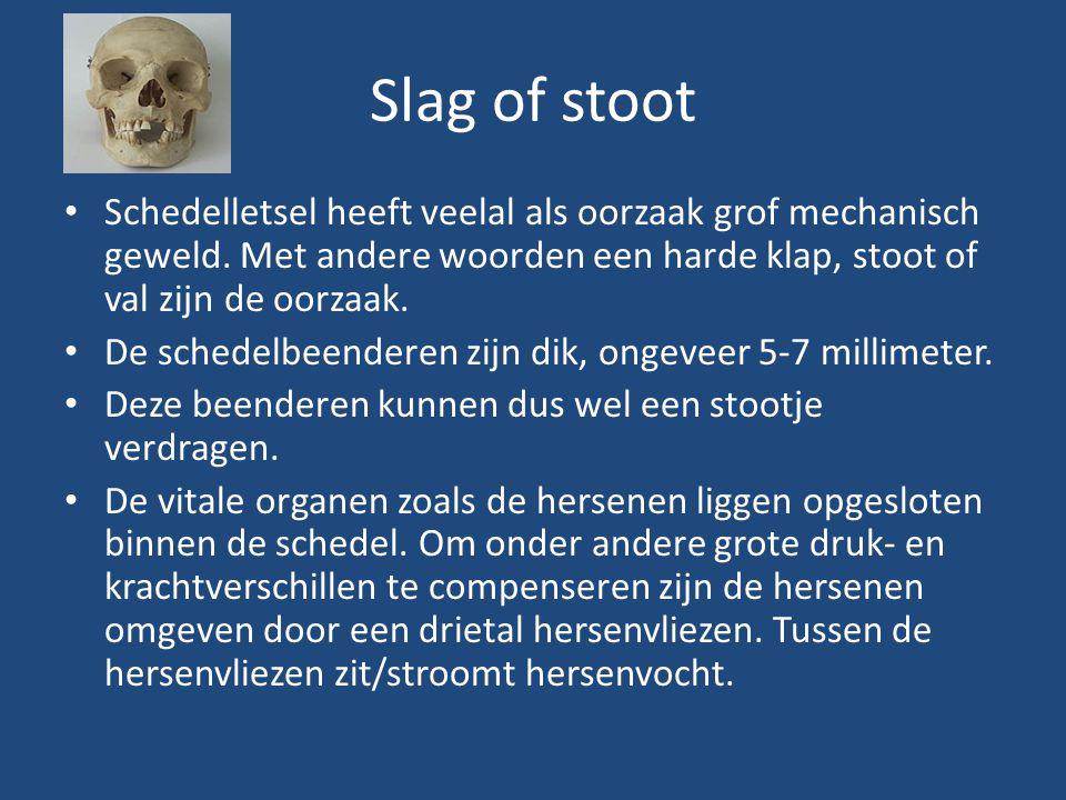 Slag of stoot Schedelletsel heeft veelal als oorzaak grof mechanisch geweld. Met andere woorden een harde klap, stoot of val zijn de oorzaak.