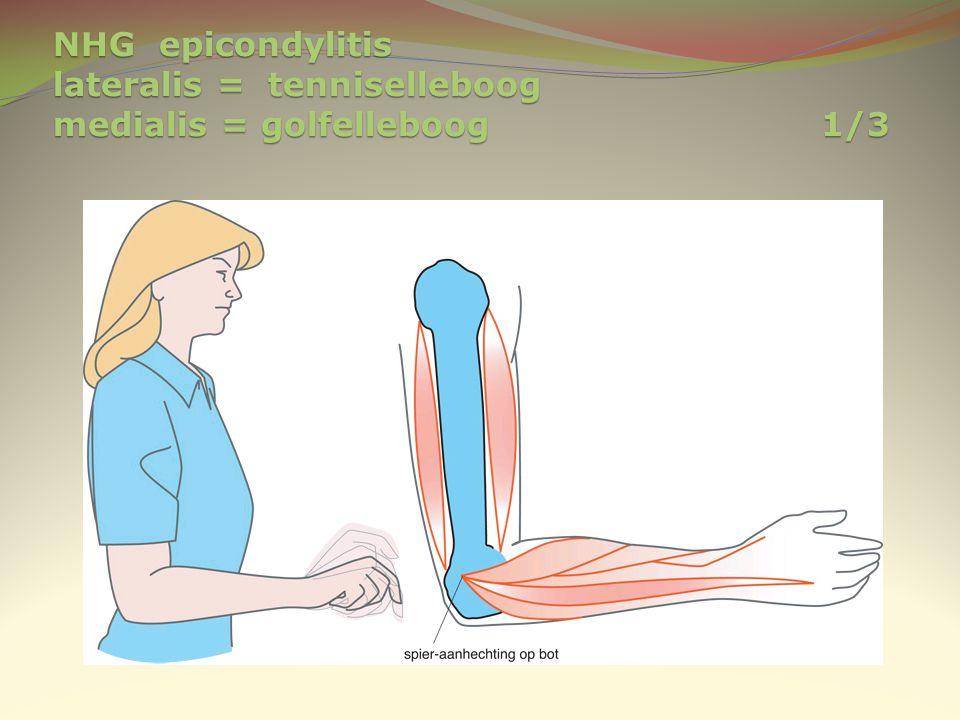 NHG epicondylitis lateralis = tenniselleboog medialis = golfelleboog