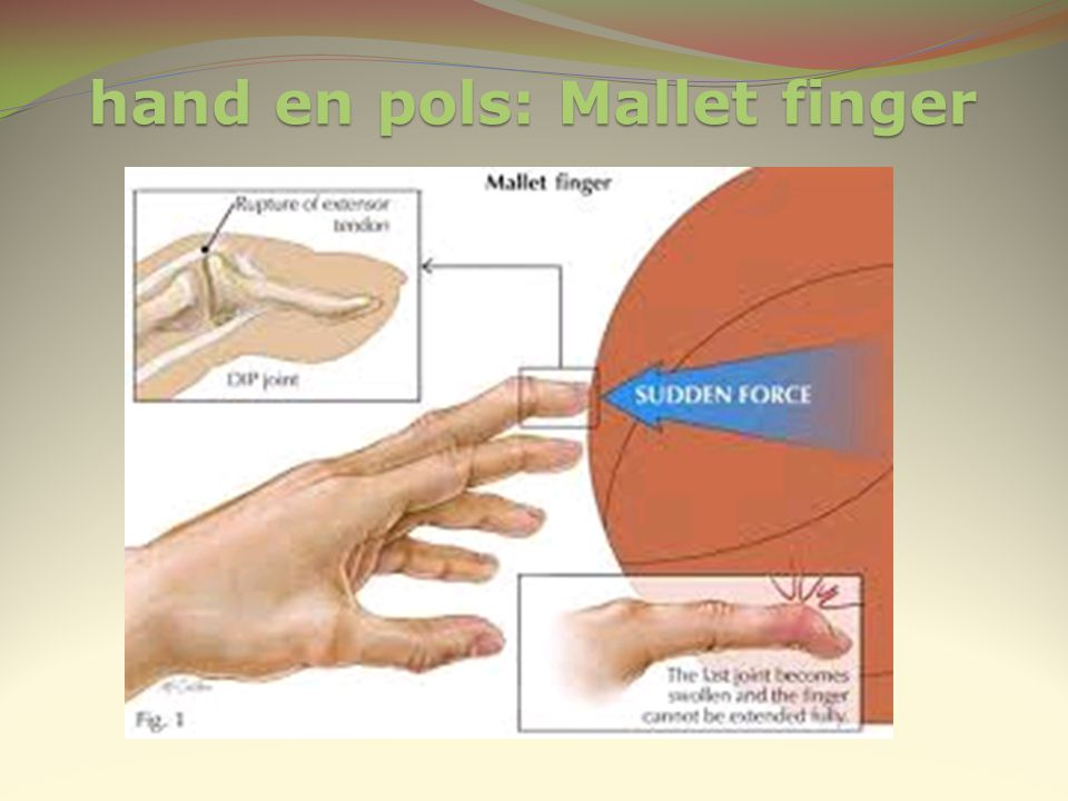 hand en pols: Mallet finger