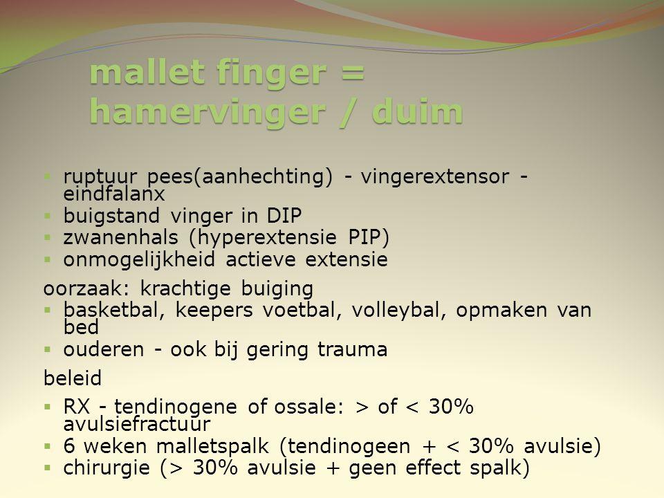 mallet finger = hamervinger / duim