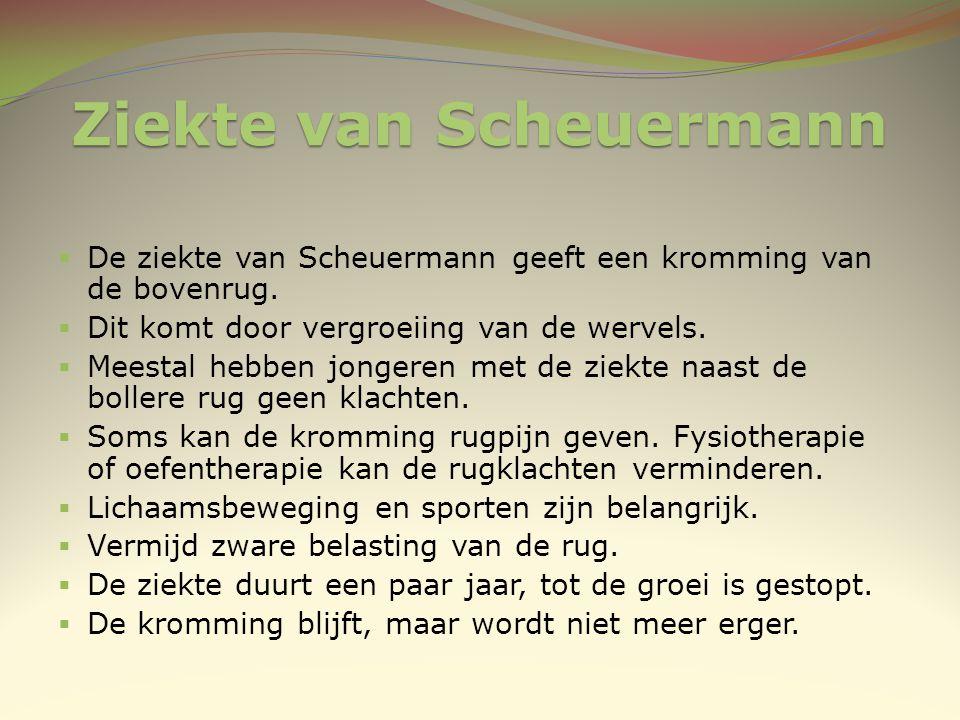 Ziekte van Scheuermann