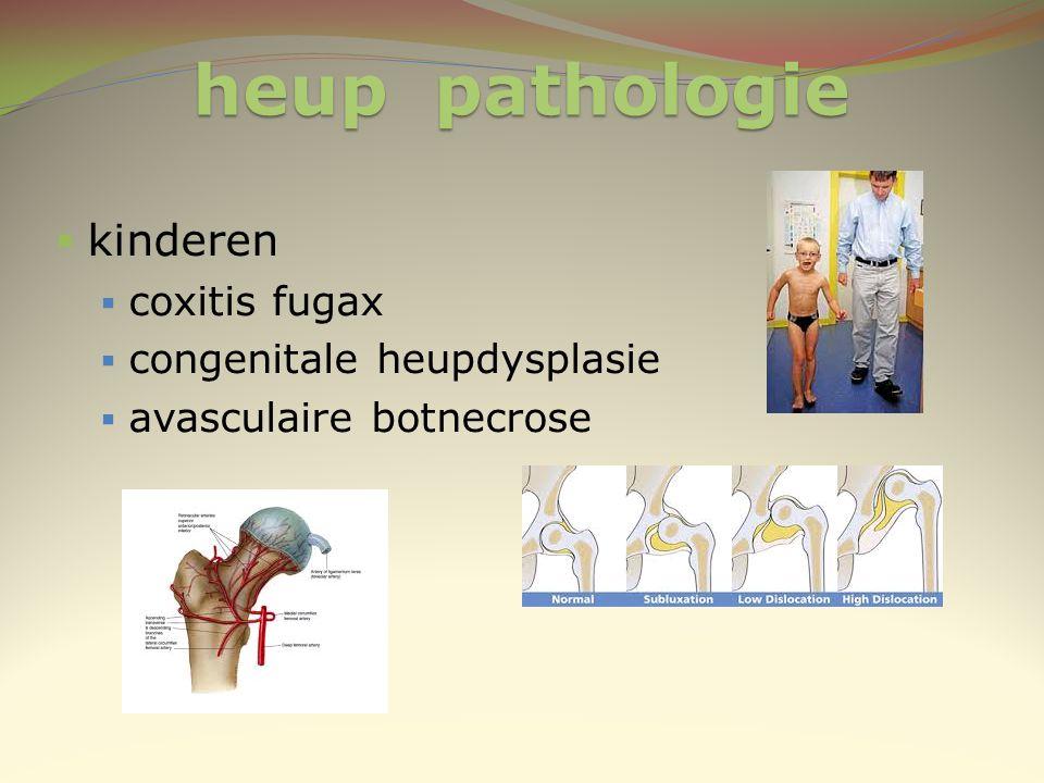 heup pathologie kinderen coxitis fugax congenitale heupdysplasie