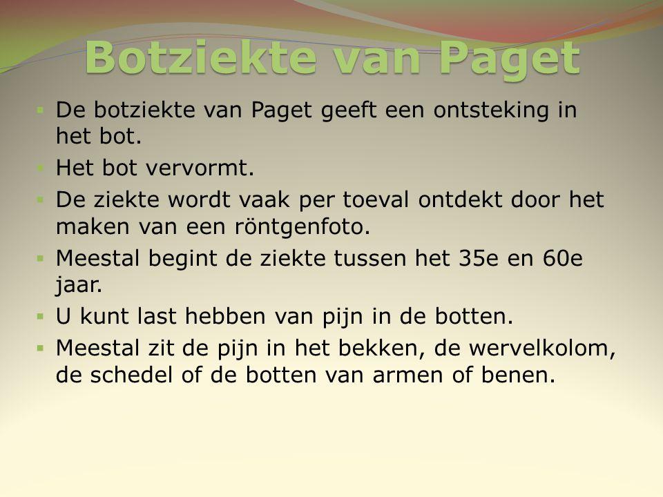 Botziekte van Paget De botziekte van Paget geeft een ontsteking in het bot. Het bot vervormt.