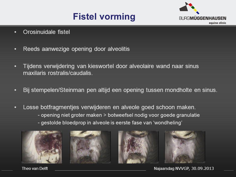 Fistel vorming Orosinuidale fistel