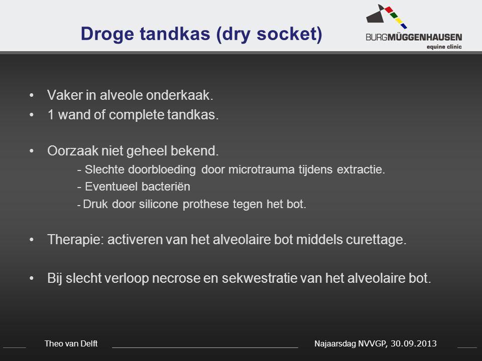 Droge tandkas (dry socket)