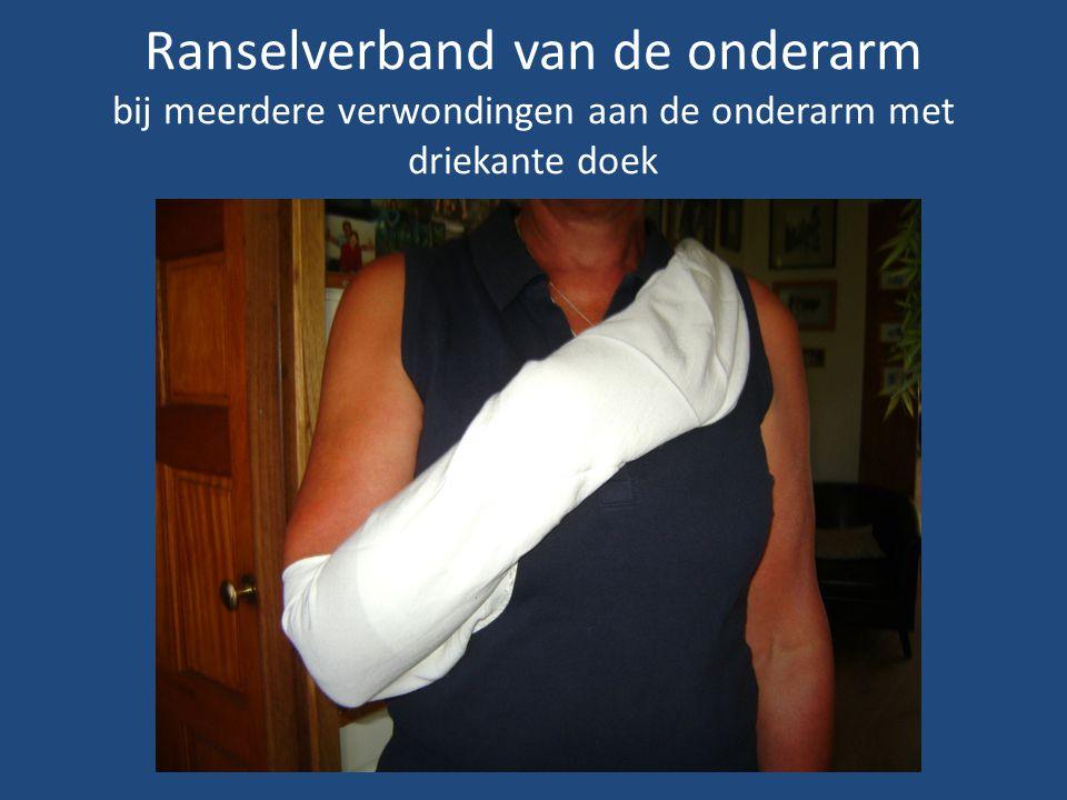 Ranselverband van de onderarm bij meerdere verwondingen aan de onderarm met driekante doek