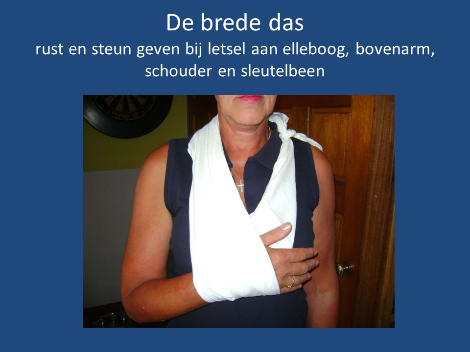 De brede das rust en steun geven bij letsel aan elleboog, bovenarm, schouder en sleutelbeen