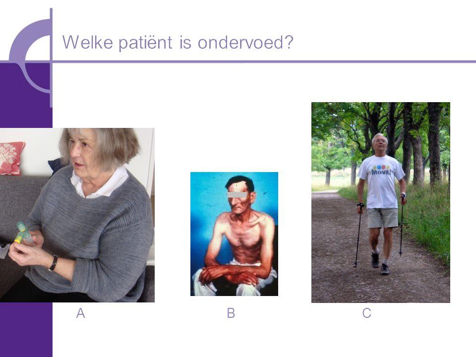 Welke patiënt is ondervoed