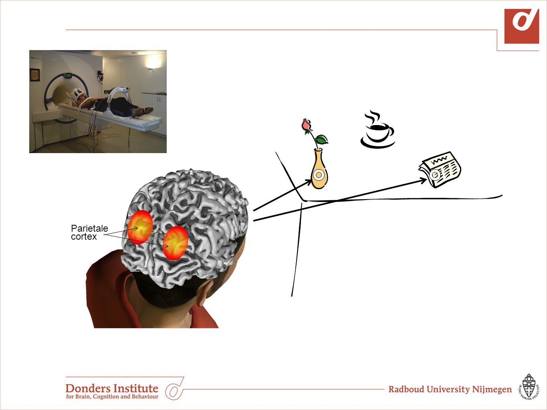 Parietale cortex