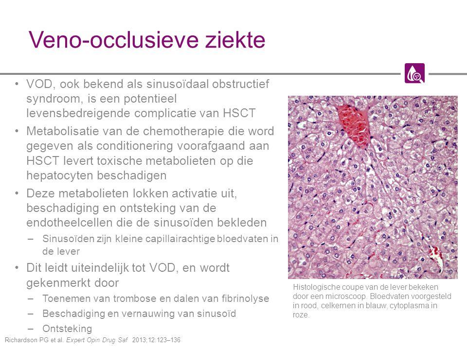Veno-occlusieve ziekte