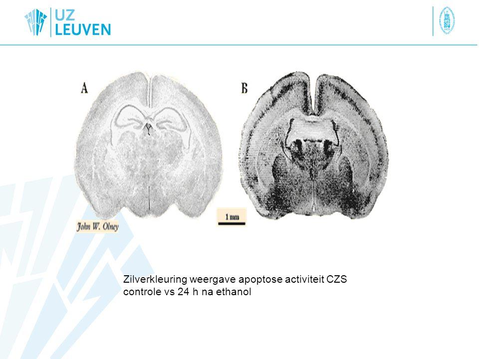 Zilverkleuring weergave apoptose activiteit CZS