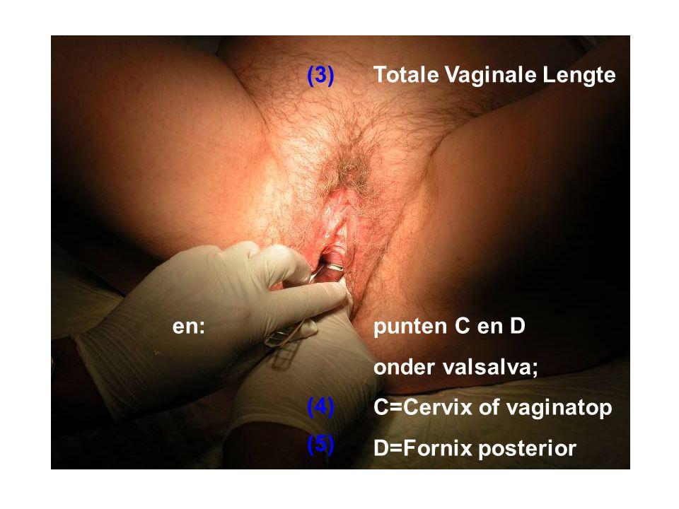 (3) Totale Vaginale Lengte. en: punten C en D. onder valsalva; C=Cervix of vaginatop. D=Fornix posterior.