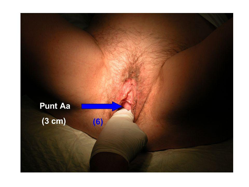 Punt Aa (3 cm) (6) Valsalva en meten van punt Aa