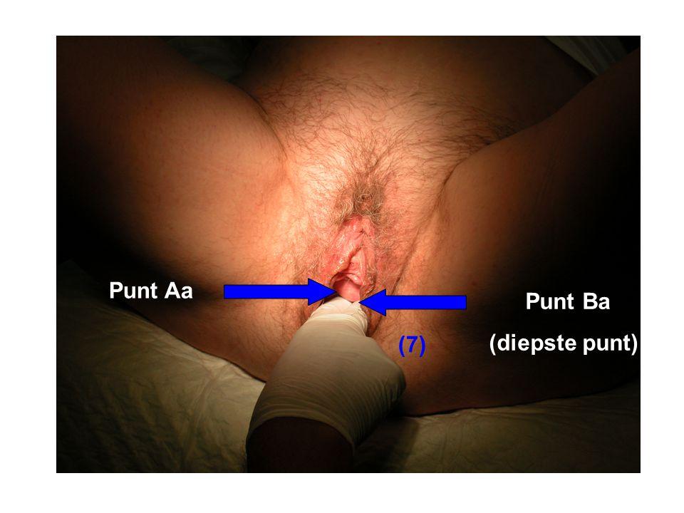 Punt Aa Punt Ba (diepste punt) Valsalva en meten van punt Aa (7)