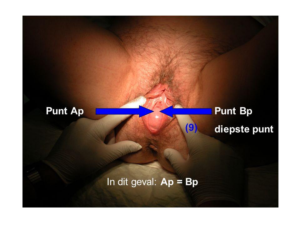 Punt Ap Punt Bp diepste punt (9) In dit geval: Ap = Bp