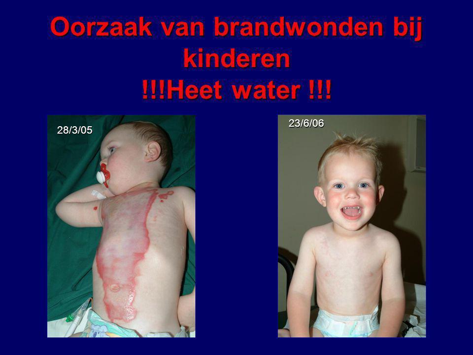 Oorzaak van brandwonden bij kinderen !!!Heet water !!!