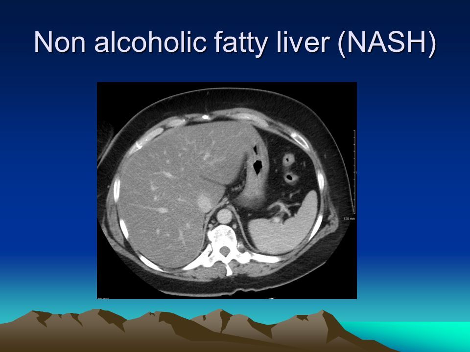 Non alcoholic fatty liver (NASH)