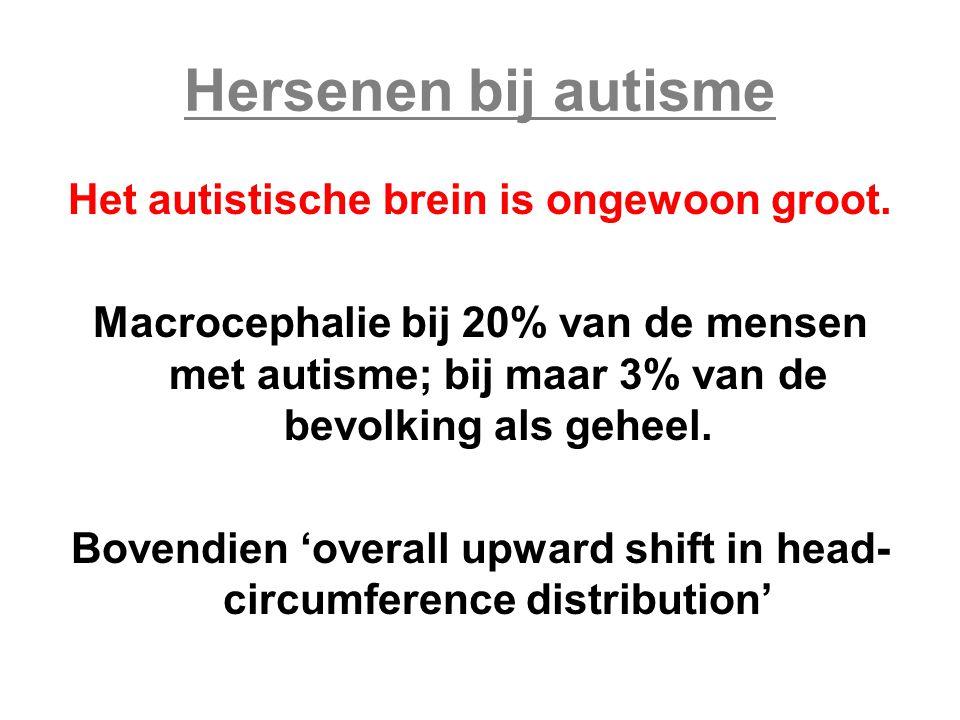 Hersenen bij autisme Het autistische brein is ongewoon groot.