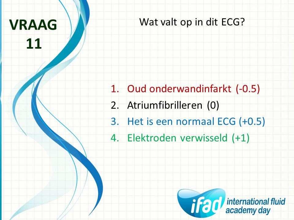 VRAAG 11 Wat valt op in dit ECG Oud onderwandinfarkt (-0.5)