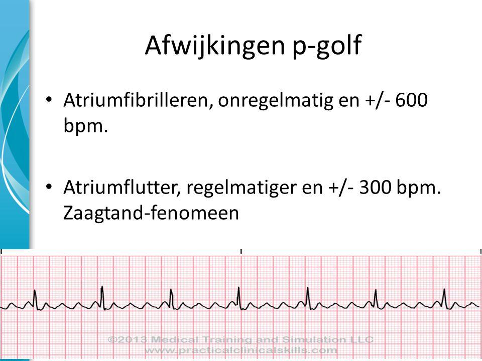 Afwijkingen p-golf Atriumfibrilleren, onregelmatig en +/- 600 bpm.