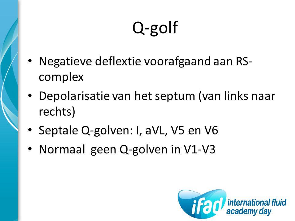 Q-golf Negatieve deflextie voorafgaand aan RS-complex