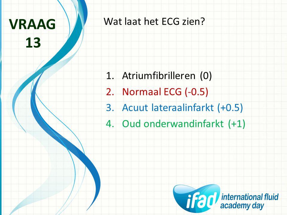 VRAAG 13 Wat laat het ECG zien Atriumfibrilleren (0)