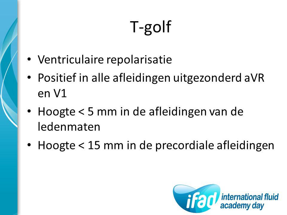 T-golf Ventriculaire repolarisatie