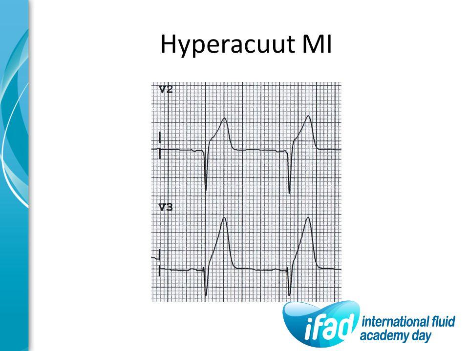 Hyperacuut MI