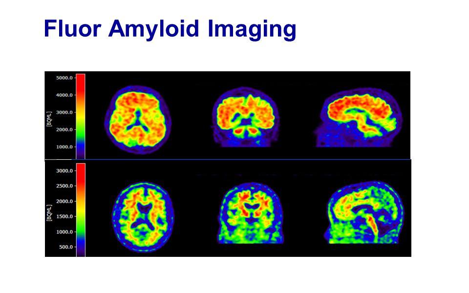 Fluor Amyloid Imaging Mw Korteweg. Scan licht bewogen.