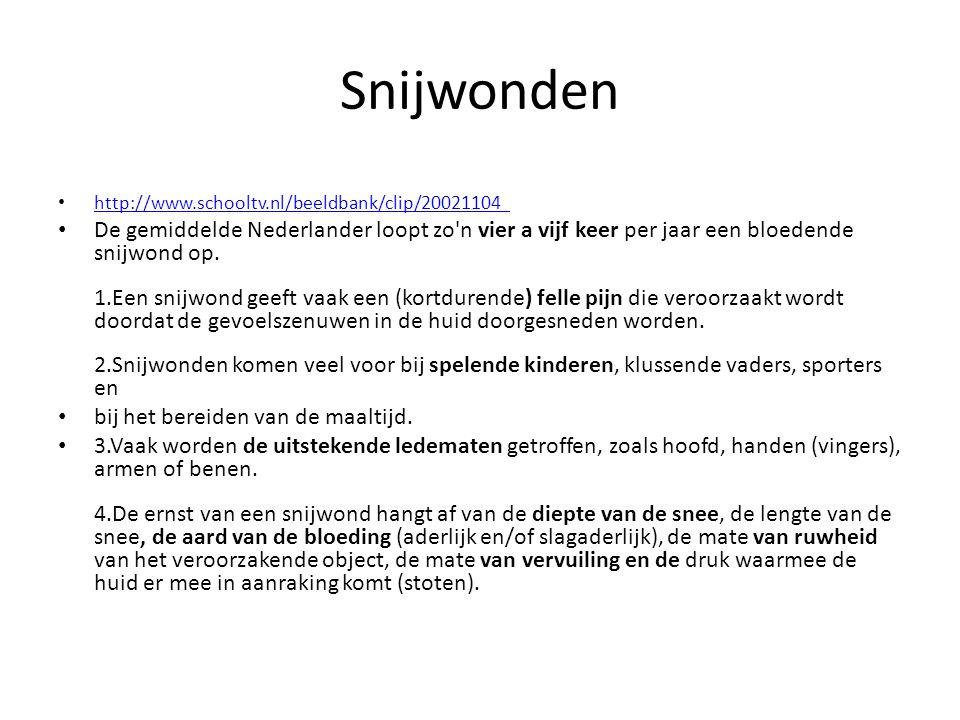 Snijwonden http://www.schooltv.nl/beeldbank/clip/20021104_.