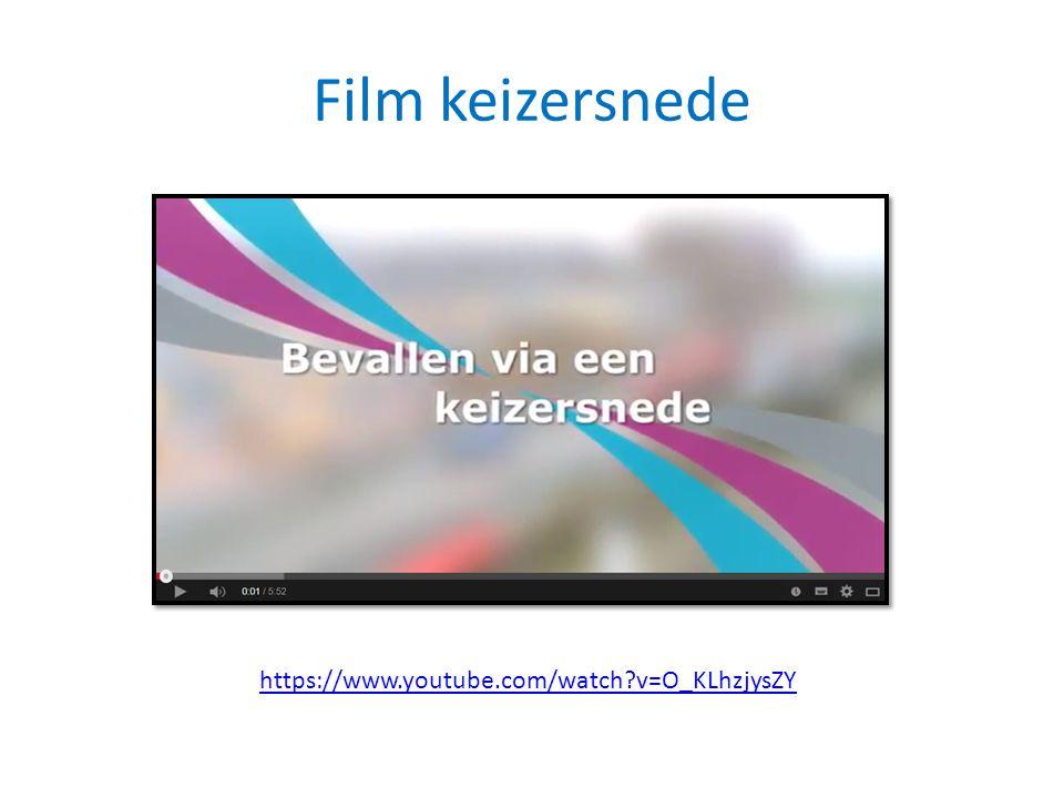 Film keizersnede https://www.youtube.com/watch v=O_KLhzjysZY