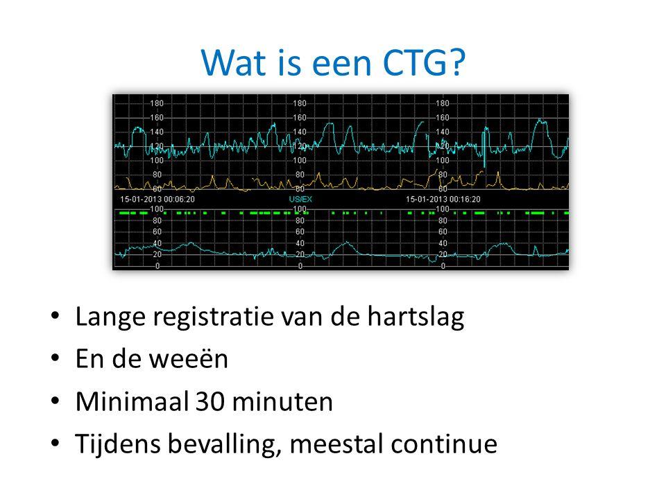 Wat is een CTG Lange registratie van de hartslag En de weeën