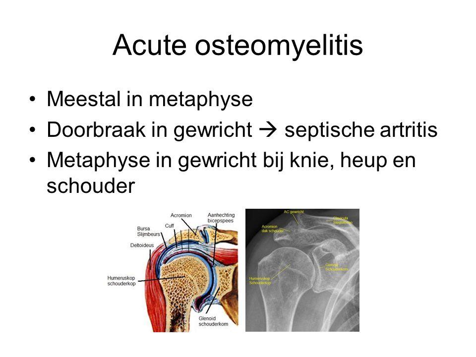 Acute osteomyelitis Meestal in metaphyse