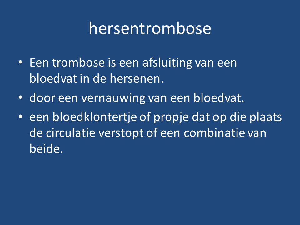 hersentrombose Een trombose is een afsluiting van een bloedvat in de hersenen. door een vernauwing van een bloedvat.