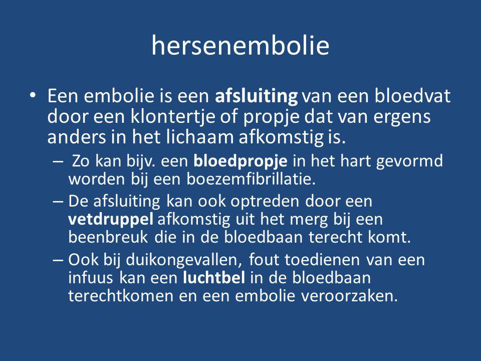 hersenembolie Een embolie is een afsluiting van een bloedvat door een klontertje of propje dat van ergens anders in het lichaam afkomstig is.