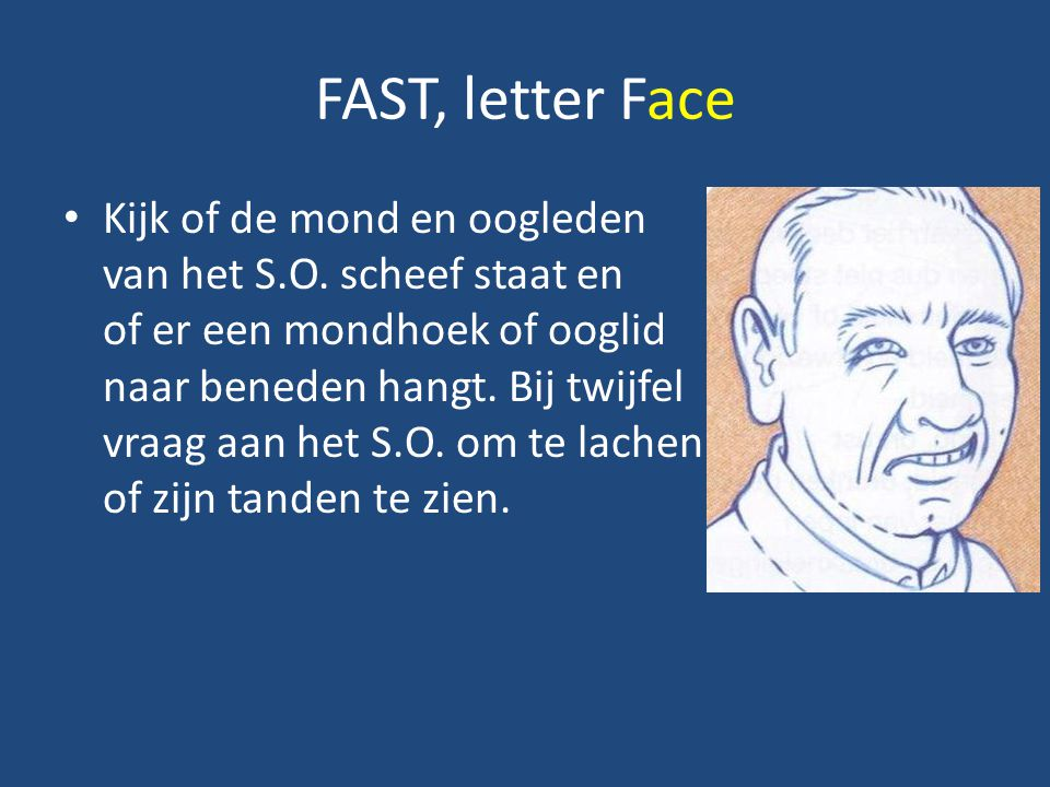 FAST, letter Face