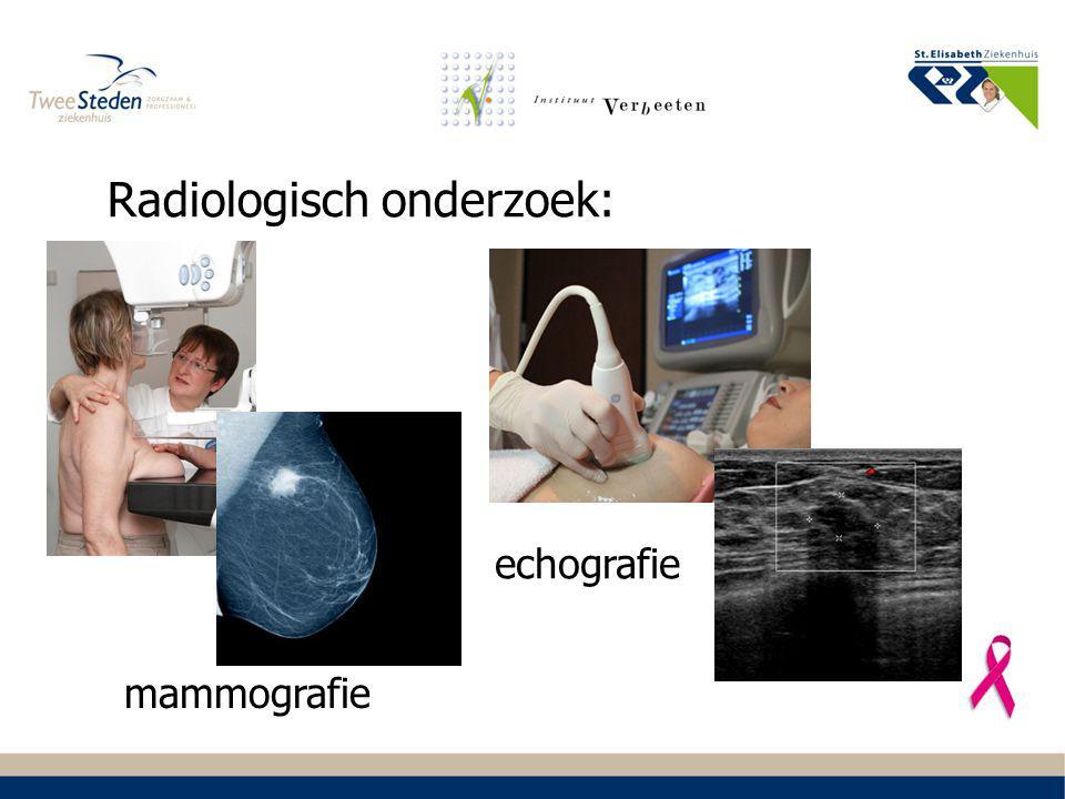 Radiologisch onderzoek: