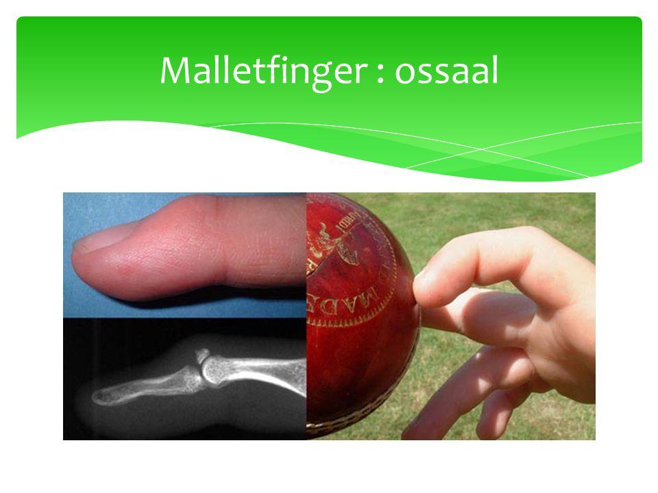 Malletfinger : ossaal
