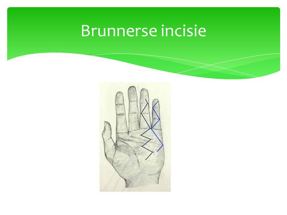 Brunnerse incisie