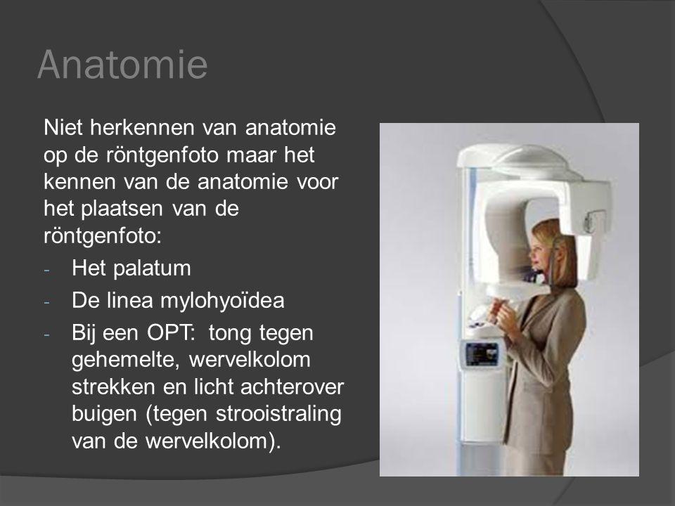 Anatomie Niet herkennen van anatomie op de röntgenfoto maar het kennen van de anatomie voor het plaatsen van de röntgenfoto: