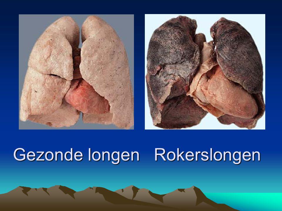 Gezonde longen Rokerslongen