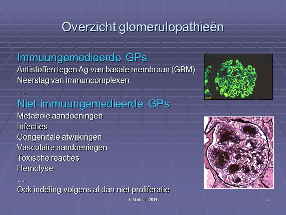 Overzicht glomerulopathieën