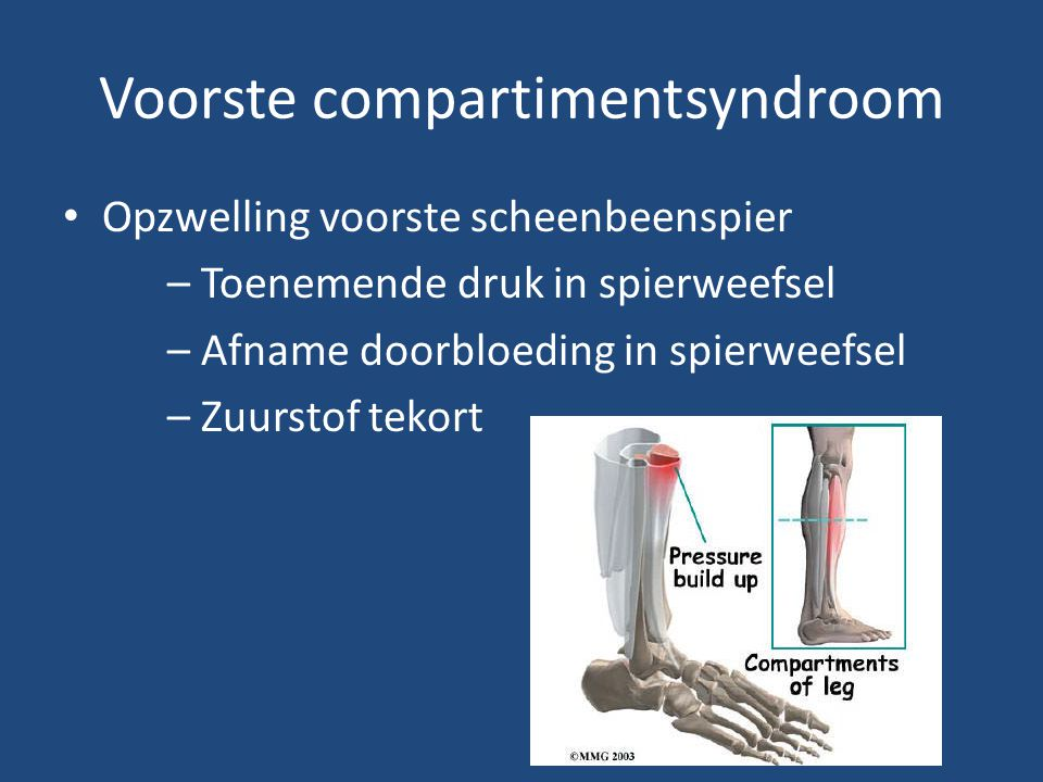 Voorste compartimentsyndroom