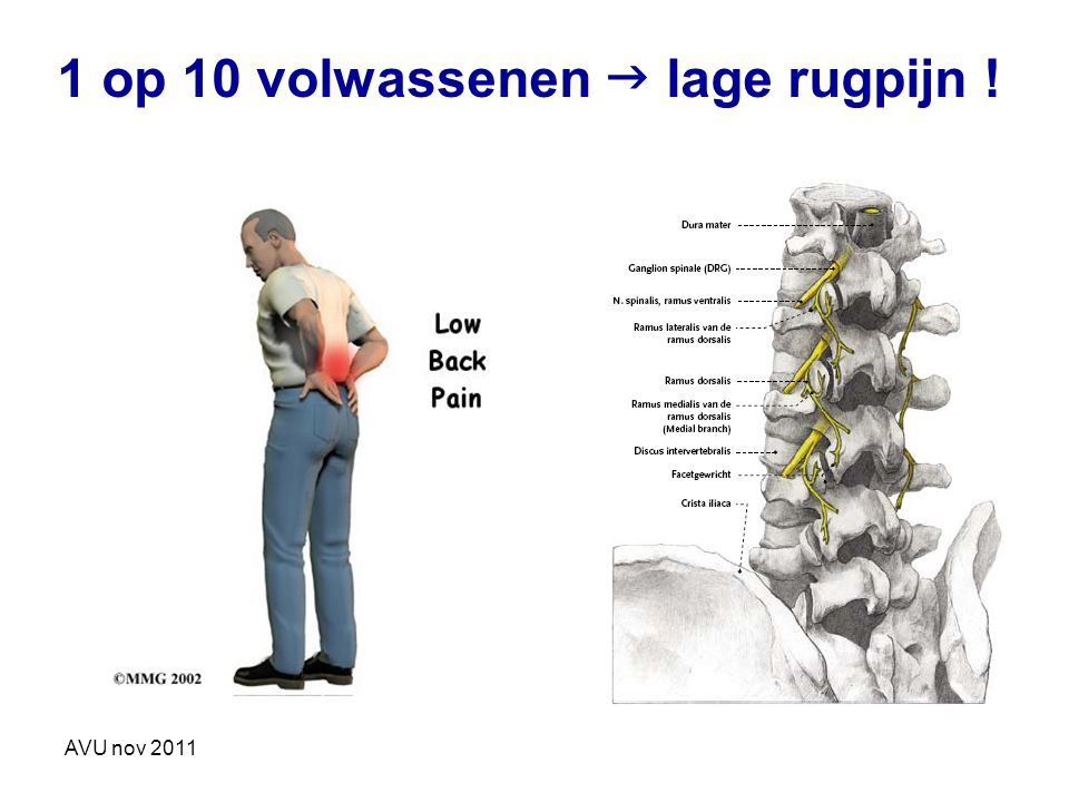 1 op 10 volwassenen  lage rugpijn !