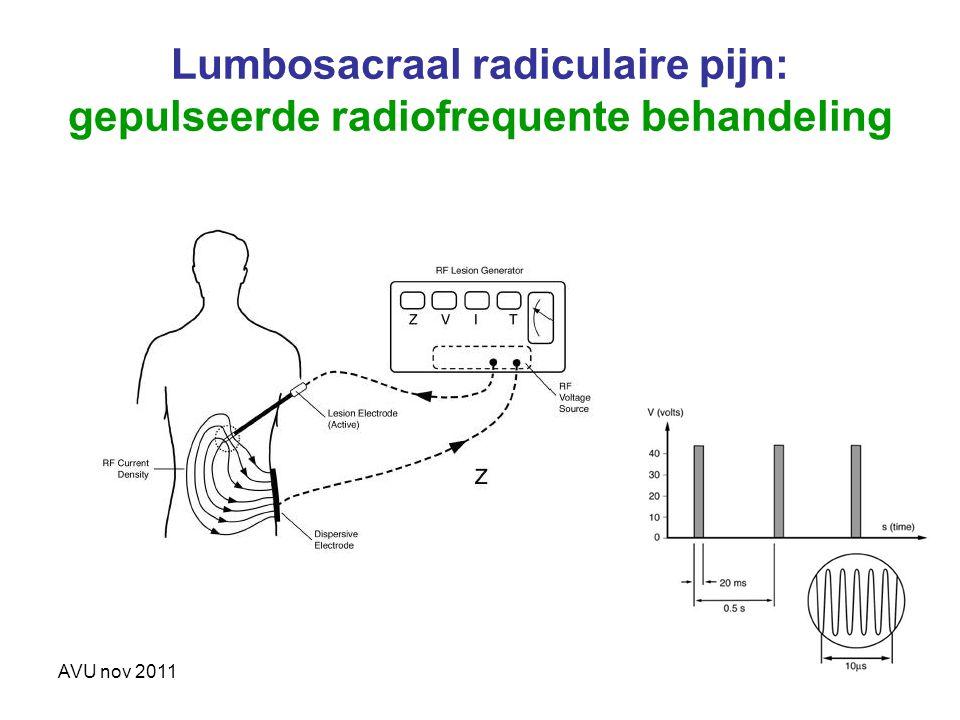 Lumbosacraal radiculaire pijn: gepulseerde radiofrequente behandeling