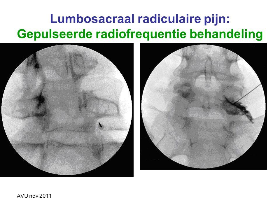 Lumbosacraal radiculaire pijn: Gepulseerde radiofrequentie behandeling